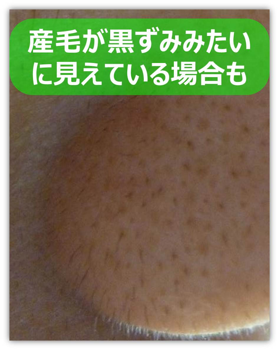 鼻の産毛.jpg